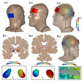 tDCS-تحریک-الکتریکی-مغز